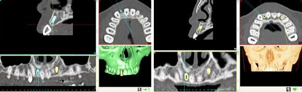 インプラント手術例 CTスキャン