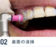 歯面の清掃